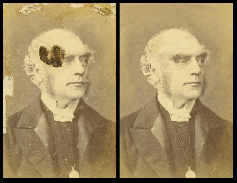 Octavius Winslow in Brighton before and after.